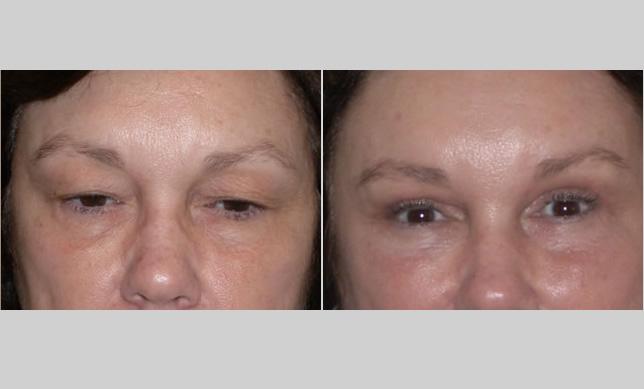 Eyelid Surgery (Blepharoplasty) - Monterey, Salinas, CA (Dr